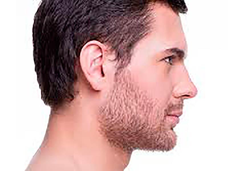 cirugia-rinoplastia-masculina-clinica-renova
